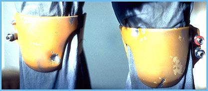 ESB knees (darts).jpg